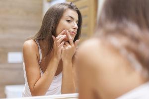 Cedili ste bubuljice na licu i sada vam je ostao ožiljak? Ovo su prirodna rešenja za njegovo otklanjanje