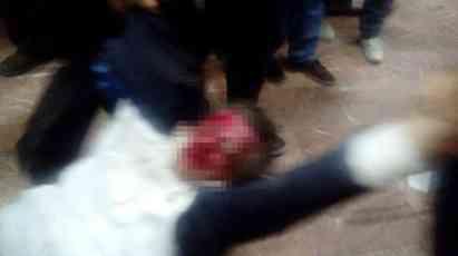 Ako ovaj Albanac umre, umreće Makedonija: Pretnje državnim udarom zbog krvavog lica Zijadina Sele (FOTO)