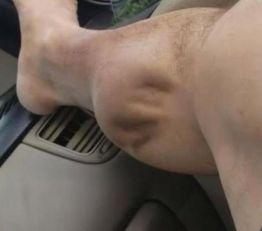 Ovo je najgori grč koji ste do sada videli (VIDEO)