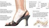 Pogledajte šta visoke potpetice rade telu