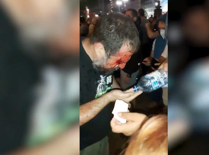 Полиција разбијала главе ко да није међу својим народом