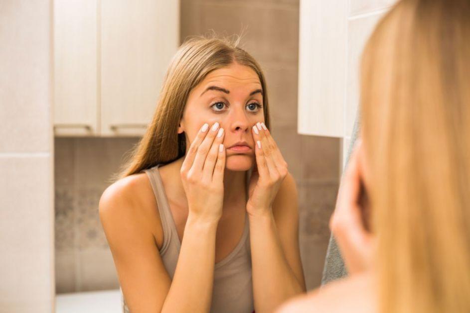 11 razloga zbog kojih vaše lice izgleda toliko otečeno