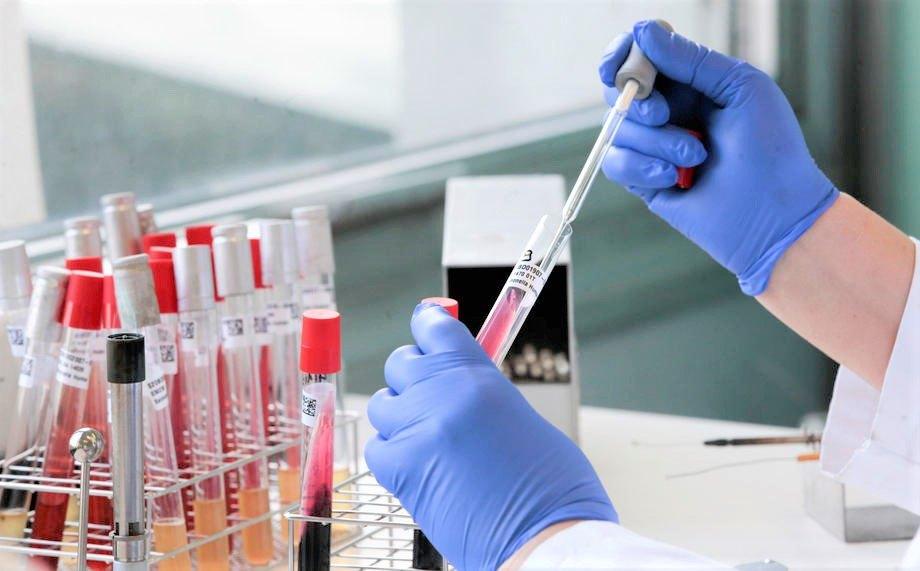 AKTUELNO: U poslednja 24 sata još 389 zaraženih, preminulo devet osoba