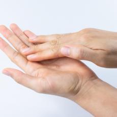Ako su vam dlanovi OVAKVI postoji veliki rizik da vam je jetra teško bolesna