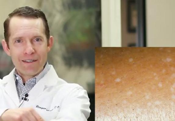 Bele tačke na koži: Šta uzrokuje IGH i kako se leči?
