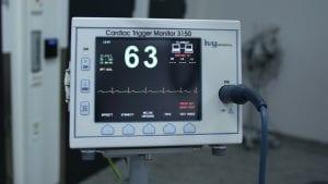 Bolesti srca i krvnih sudova vodeći uzrok umiranja u Srbiji