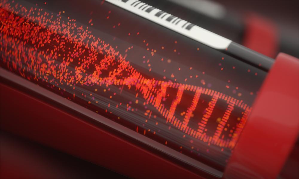 Brzi test iz krvi identifikuje covid 19 pacijente sa visokim rizikom