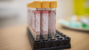 Čak 154 ljudi na respiratorima, od korona virusa preminulo 12 osoba