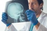 Četiri najčešća simptoma tumora na mozgu