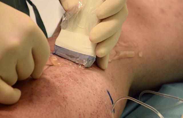 Dr Dario Jocić, vaskularni hirurg: Proširene vene mogu biti ozbiljna pretnja zdravlju