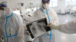 Dugotrajne tegobe nakon kovida ima između 40 i 50 odsto pacijenta