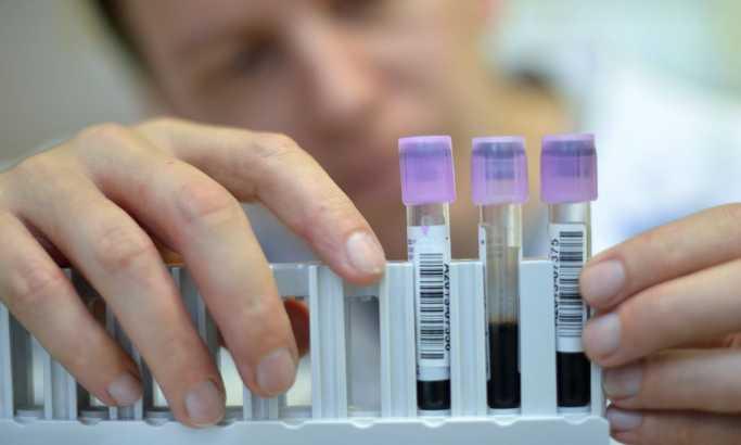 FIFA obavila 2.037 testova na doping