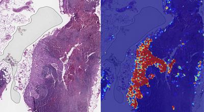 Google-ov AI uočava rak dojke brže nego ljudi