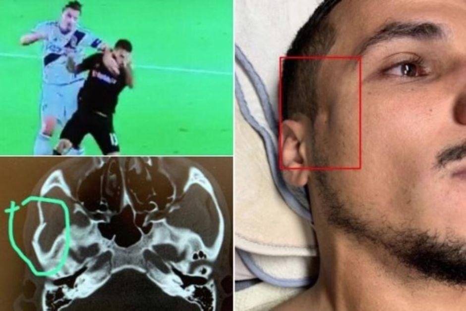 IBRAHIMOVIĆ MU LAKTOM POLOMIO LOBANJU! Posle duela sa Zlatanom nesrećni fudbaler mora na OPERACIJU! (VIDEO, FOTO)