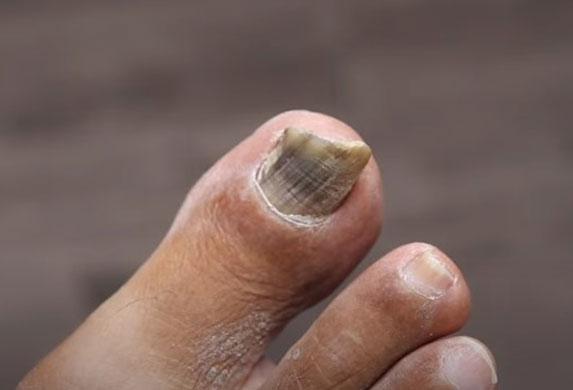 Imate gljivice na noktima?! Vreme je da ih se rešite!