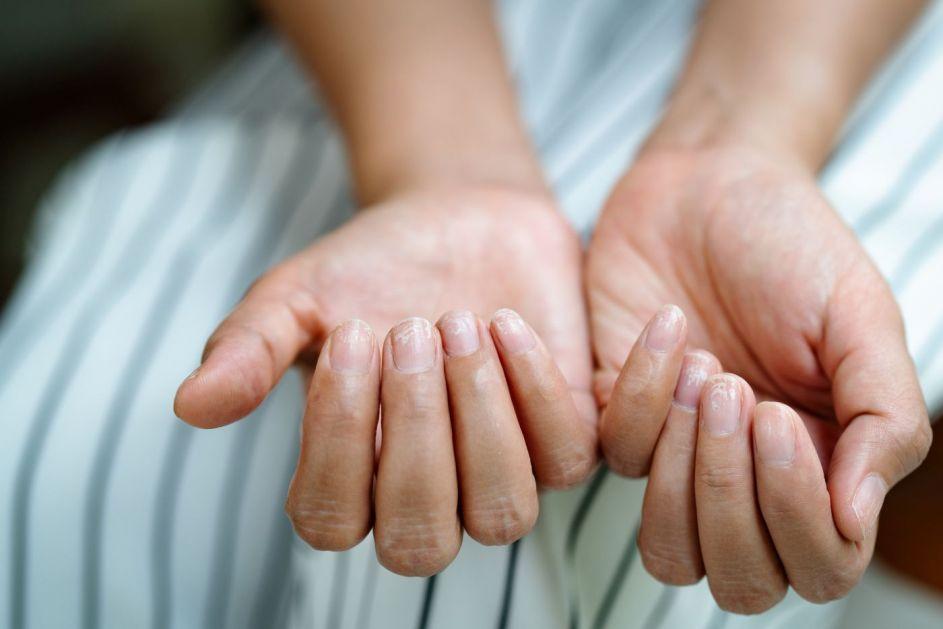 Kako ojačati krte i lomljive nokte?