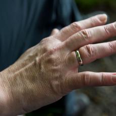 Jednostavan trik kako da skineš prsten kada ti otekne šaka za samo 60 sekundi