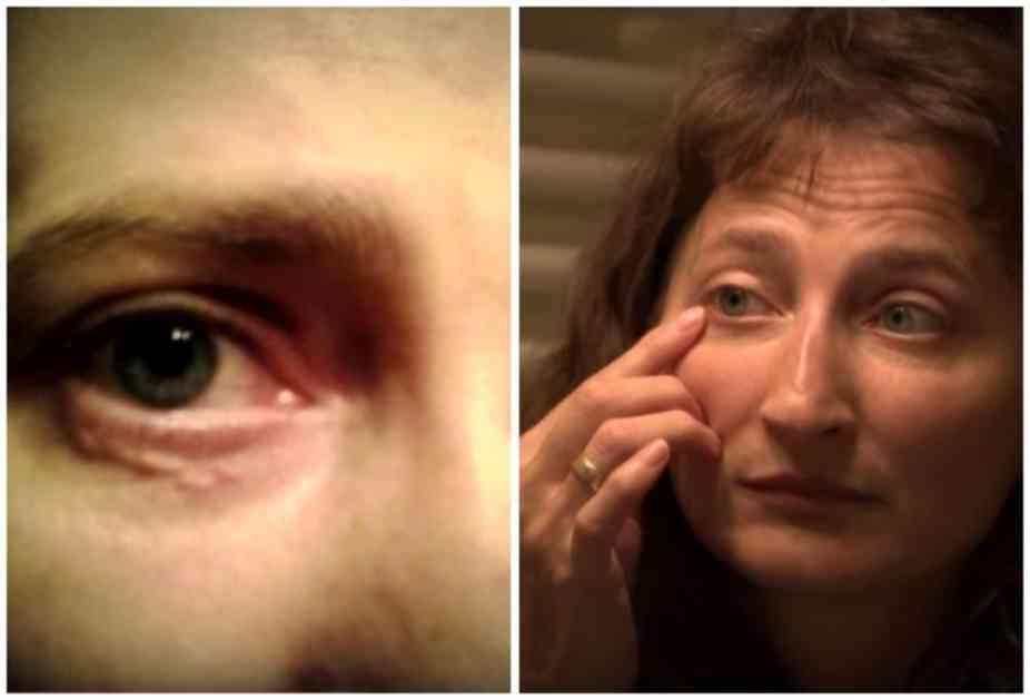 KOMARAC JE UJEO ZA KAPAK, A ONDA JE POČEO HOROR: Mirelu je probudio jak bol, osetila je kako joj nešto GMIŽE U OKU! (VIDEO)