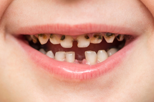 Kada je vreme za prvu posetu stomatologu