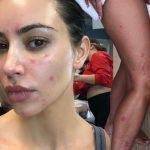 Kim Kardashian pokazala lice bez šminke: Pogledajte tragove psorijaze