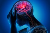 Kovid 19 opasan za mozak i nakon ozdravljenja