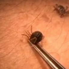 NAJEZDA KRPELJA JE U TOKU: Dragocen savet doktorke kako se vadi ovaj insekt, na OVO POSEBNO OBRATITE PAŽNJU
