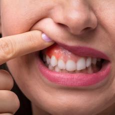 NAKON KORONE, ZUBI ISPADAJU! Sve više ljudi prijavljuje ovu POSLEDICU bolesti, stomatolozi dali jasno objašnjenje