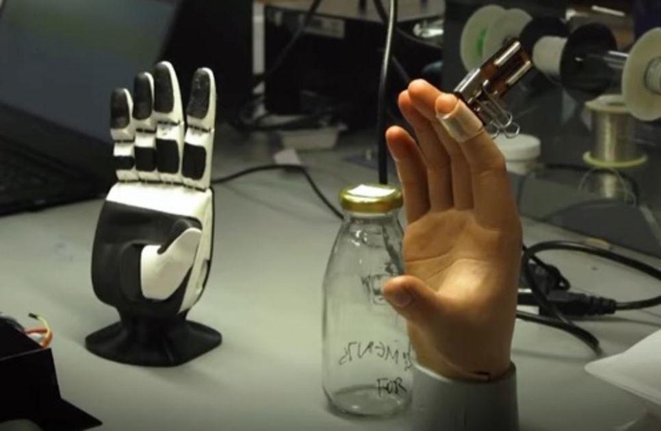 NAUČNICI IZUMELI ČUDO! Ova veštačka koža omogućava ljudima sa protezom da ponovo ostete dodir, toplotu pa čak i bol!