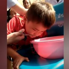 NIJE MOGAO DA DIŠE! Mališanu iz nosa IZVADILI PIJAVICU, parazit GODINU DANA živeo u dečaku (VIDEO)