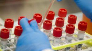 Na Infektivnoj klinici KBC Kosova 43 pacijenata sa korona virusom