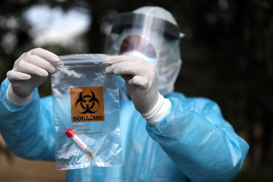 Na KiM nova 392 slučaja korona virusa, preminulo 6 osoba