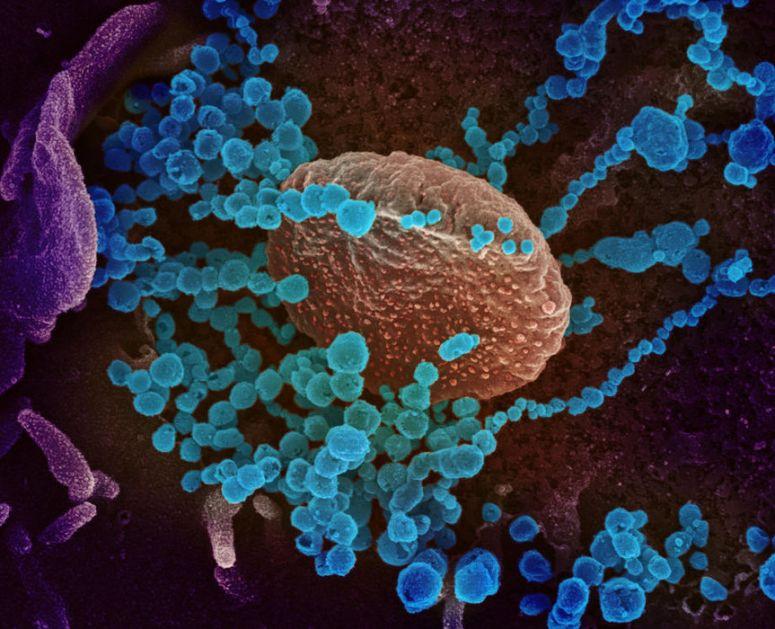 Nivo opasnosti od koronavirusa veoma visok, skoro 84.000 obolelih u svetu, prva žrtva u SAD