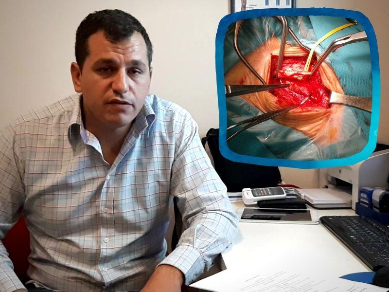 Nova operacija arterija potpuno sprečava moždani udar i čuva živote