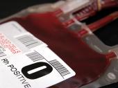 Nove studije potvrđuju uticaj krvne grupe na tok infekcije koronom