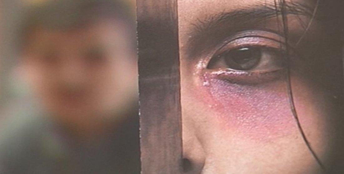 Novi Sad: Devojci unakazio lice, pekao je peglom, lomio kosti...