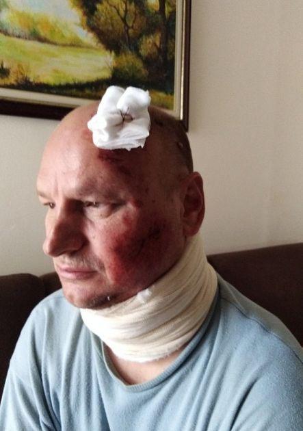 Novosađanin pokraden nakon što ga je udario automobil