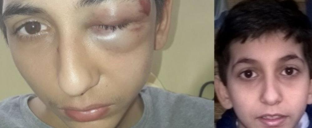 OVO JE DEČAK IZ SRBIJE KOG SU PREBILI FRANCUSKI POLICAJCI: Oborili ga i šutirali u glavu, izbili mu zube, povredili oko