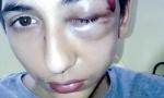 Operisan Gabrijel Đorđević, dečak koga je policija pretukla u Parizu: Lekari se bore za mališanovo oko
