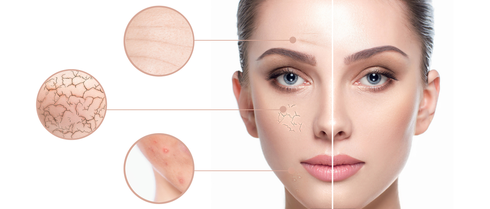 Otkrijte koji je tip vaše kože i kako najbolje da je tretirate