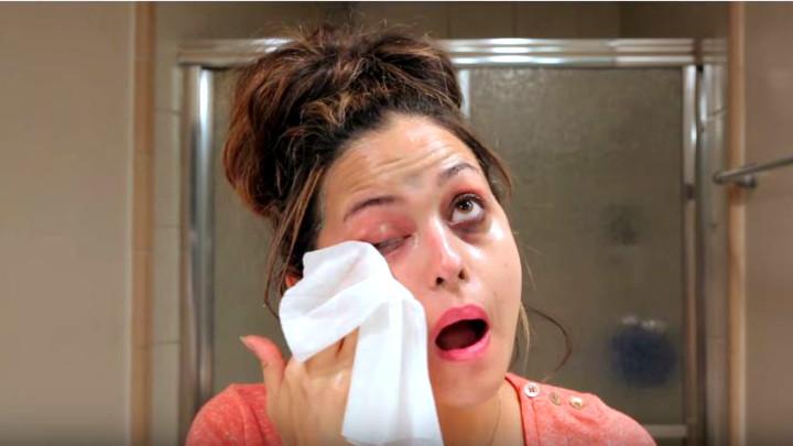 Ovo su najčešće greške koje pravimo prilikom skidanja šminke, a jedna je posebno opasna po vaše zdravlje!