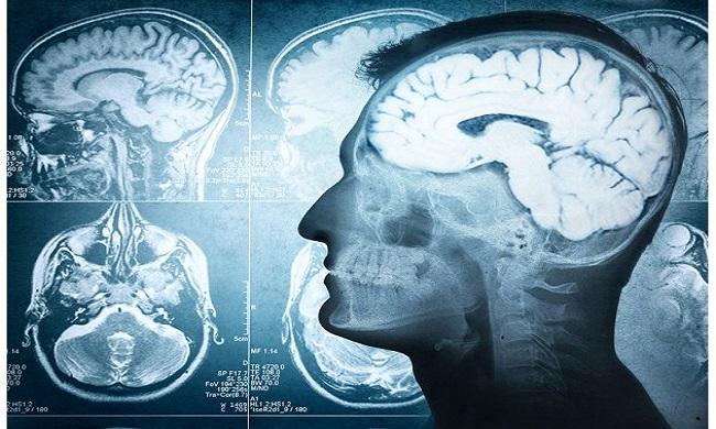 Pet jednostavnih koraka za unapređenje moći uma