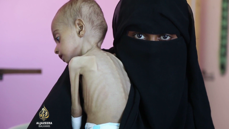Potresni snimci iz Hudaydaha, djeca umiru od gladi