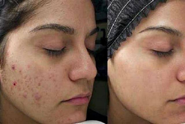 Prala je lice i kosu votkom – rezultat će vas oduševiti