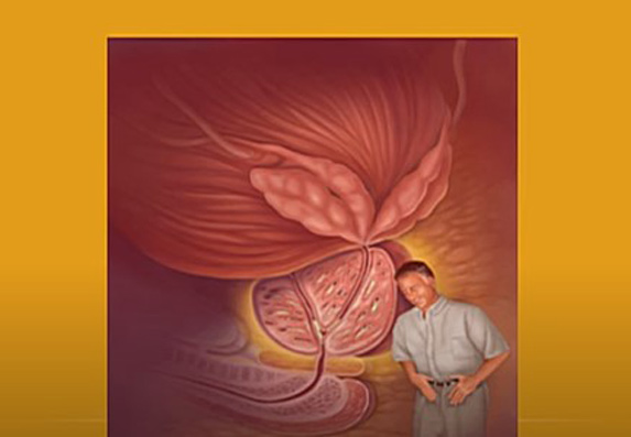 A prosztatitis olajfenyő kezelése A prosztata fibrózisból