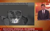 Prvi put kod nas: Hirurzi od dela ramene lopatice prave gornju vilicu VIDEO