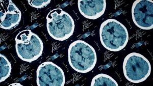 "Psihologija i kriminalitet: ""Drugi čovek postati nećete"". Kako oštećenja mozga dovode do zločinačkog ponašanja"