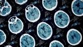 Psihologija i kriminal: Drugi čovek postati nećete - kako oštećenja mozga dovode do zločinačkog ponašanja