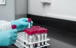 Rade Panić: Vlast spremna da krivotvori dokumentaciju o epidemiji