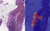 Razvijen sistem koji prepoznaje ćelije raka u 99 odsto slučajeva