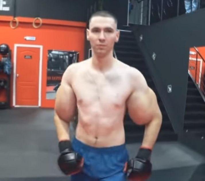 ŠOKANTNO! MOGAO BI DA OSTANE BEZ RUKU: Nikada nije išao u teretanu, pa je u mišiće ubrizgao OTROVNU SUPSTANCU kako bi bio nabildovan! (VIDEO)